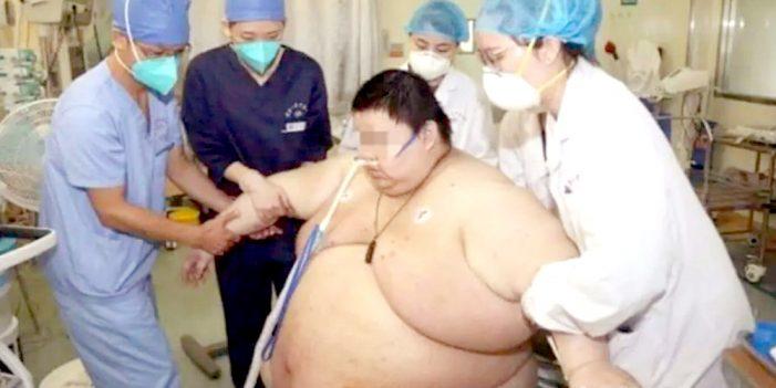 Subió cien kilos de peso en confinamiento por Covid-19